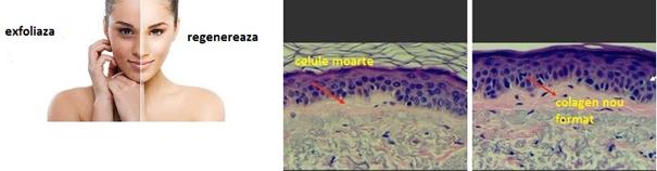 Microdermoabraziune