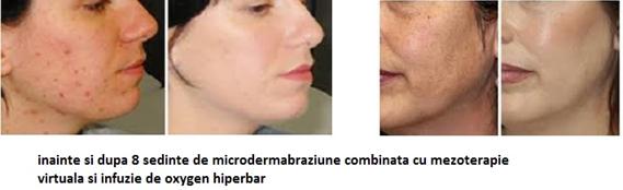 Microdermoabraziunea3