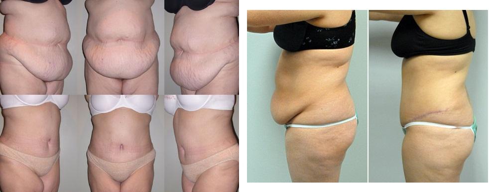 rezultate abdominoplastia