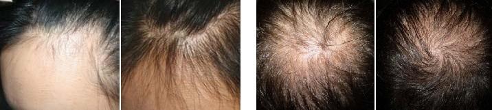 microneedling alopecie